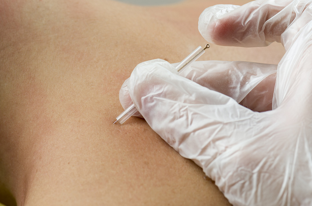 Acupuncture & Dry Needling- What's the Difference?